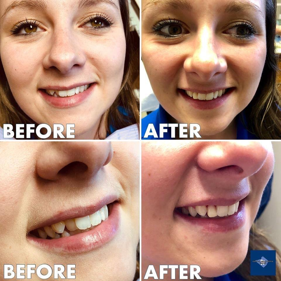This awesome patient was dissatisfied with a malpositioned tooth, and we helped out in a very non-invasive way...in 10 minutes, with NO Novocain and NO drilling, we had a very happy patient!