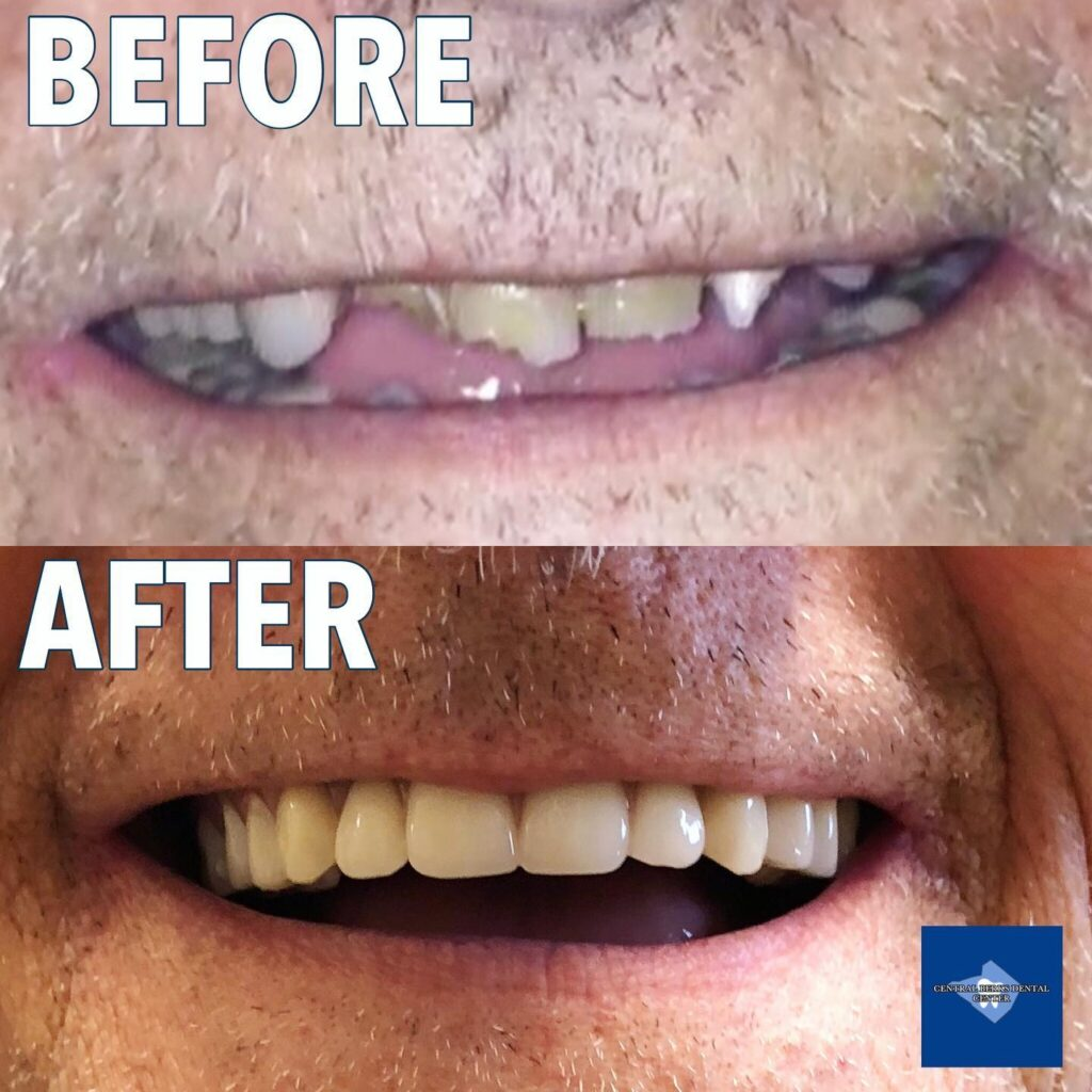 Dr. Jordan collaborated with Dr. Geoffrey Zinberg at Berks Oral Surgery + Dental Implant Center and the team at DeLux Dental Laboratory to make this incredible dental transformation possible through the life-changing New Teeth Today procedure. New Teeth Today allows for dental implants to be placed and permanent teeth to be inserted during a SINGLE APPOINTMENT.
