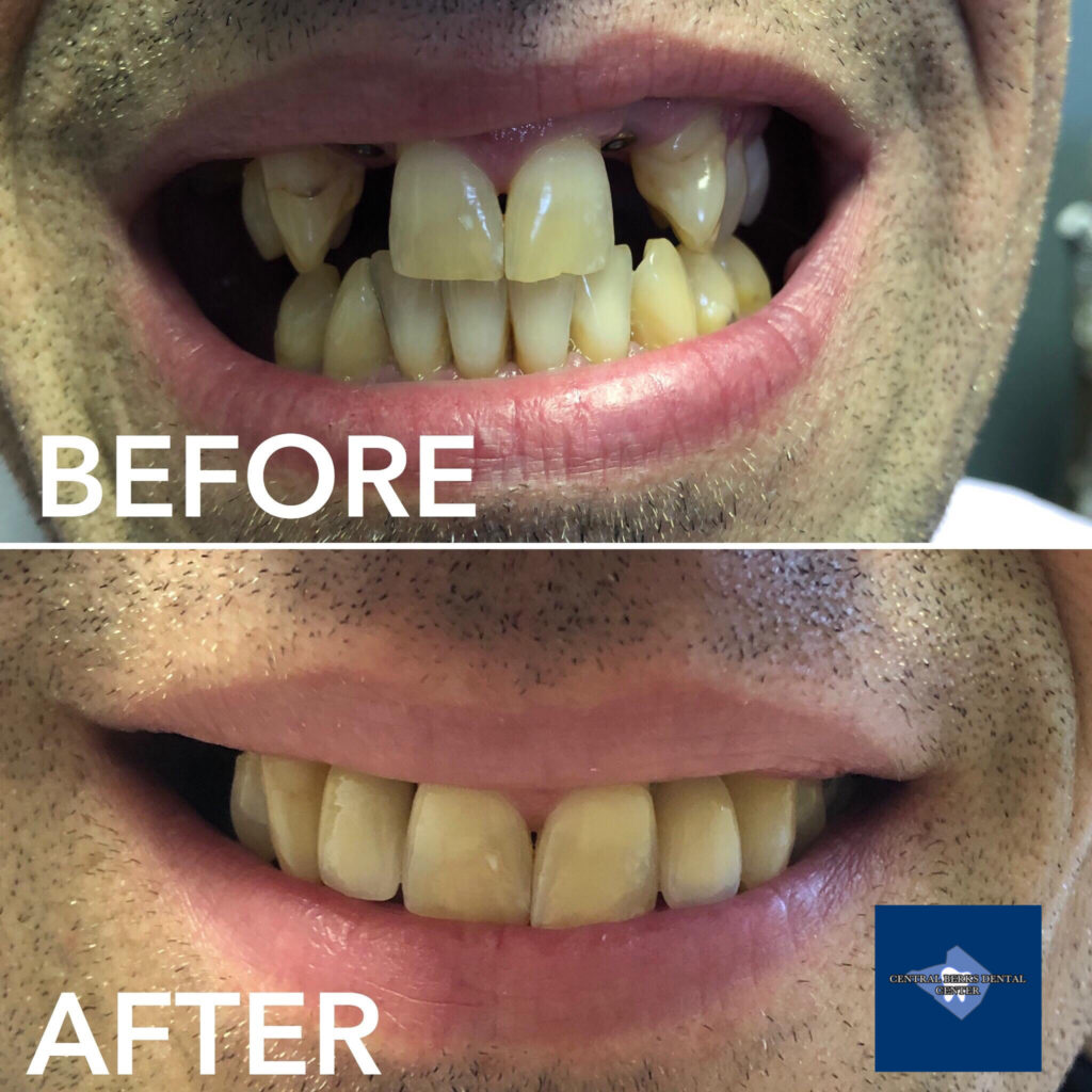 Dr. Jordan worked with Dr. Geoffrey Zinberg at Berks Oral Surgery + Dental Implant Center to make this incredible new smile possible! After Dr. Zinberg placed the dental implants for missing teeth, we completed this beautiful smile here at Central Berks Dental Center by making the crowns and performing some polishing and bonding with NO drilling and NO Novocain.