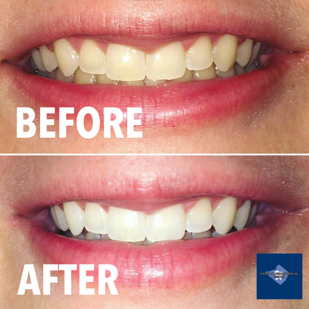 Check out one of our awesome patient's beautiful smile transformation after Opalescence Teeth Whitening. Want to learn more about teeth whitening options? Call us!