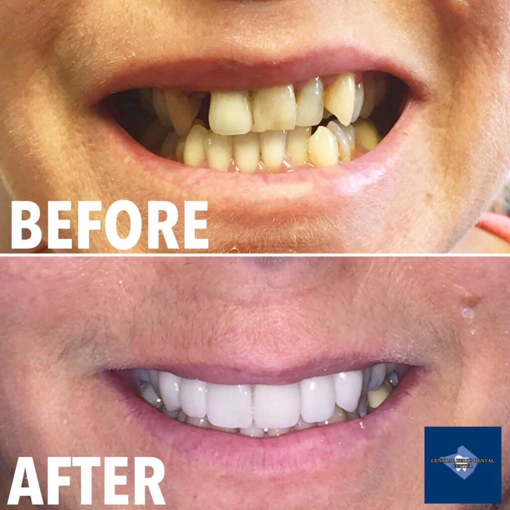 After undergoing a front tooth extraction, our awesome patient returned to us here at Central Berks Dental Center. Since her remaining teeth were worn, broken, and misaligned, our patient decided to proceed with a bridge and crowns versus a dental implant for a new, improved, beautiful smile!