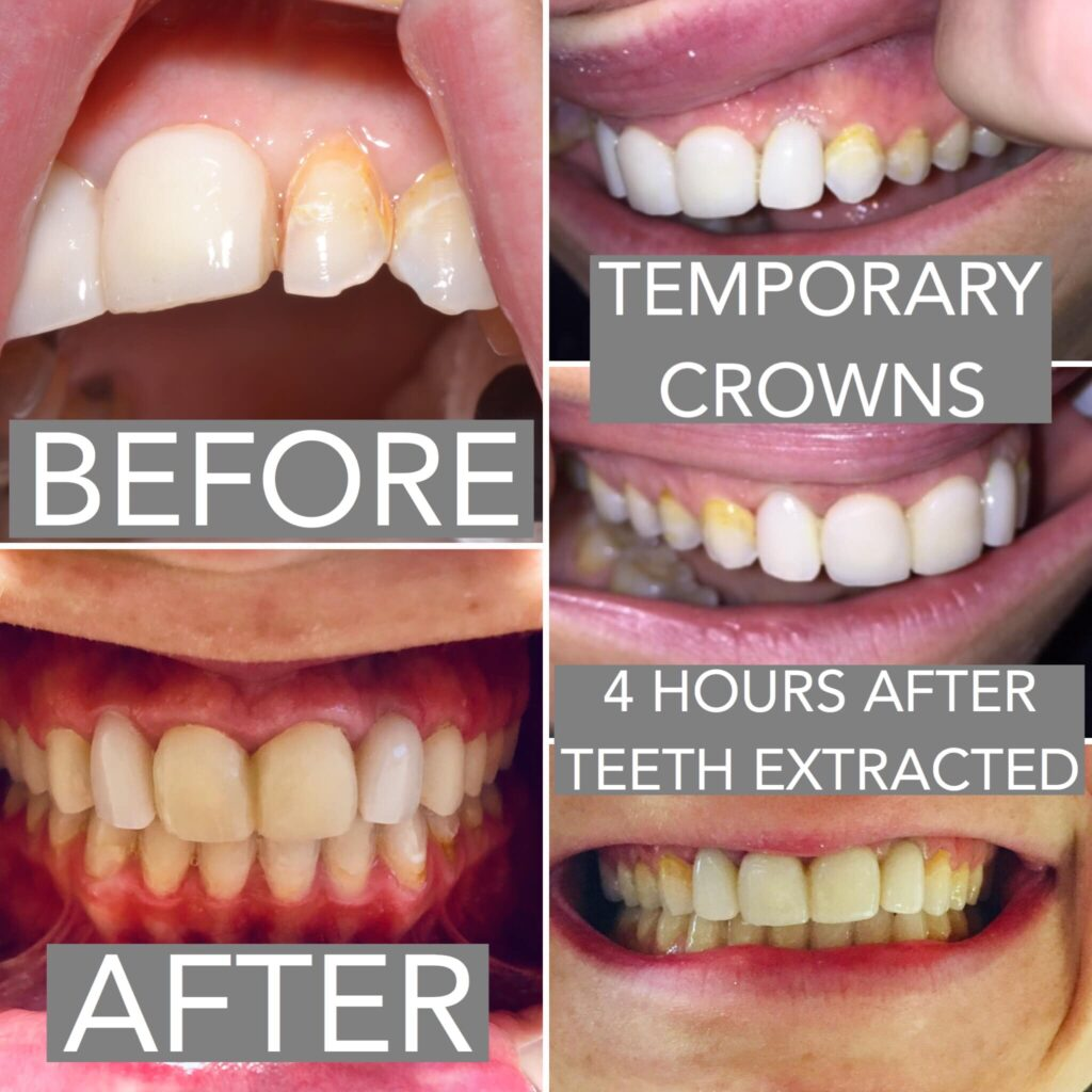A local Orthodontist was dissatisfied with the appearance of her teeth & had multiple issues of dental decay & fillings to her front teeth for roughly a decade. Our goal: to formulate a plan to achieve not only a highly cosmetic result, but also a long-lasting result that would also protect for possible future decay. After examination & consultation, a decision was made to extract the 2 teeth aside her front teeth due to significant decay. First, however, we planned to temporarily crown the front teeth to make sure a good result was possible. Once these teeth were crowned (& more importantly, were determined as sound enough to remain), a referral was made to Dr. Fallon at Berks Oral Surgery + Dental Implant Center for dental implants to be placed where the 2 side teeth were to be extracted. Amazingly, Dr. Fallon was able to extract both unrestorable teeth & place implants in the SAME VISIT! Even more amazingly, implant temporary crowns were able to be placed THE SAME DAY - a very unique situation! We made a model of the positioning of the implants placed by Dr. Fallon while the patient was coming out of anesthesia. The pictures you see are of the implant temporary crowns just 4 hours after the actual teeth were extracted (note how unbelievably good the gums look!)! At this point, we needed to wait a few months for the implants to become fully embedded in bone to finish the case. Meanwhile, a decision was made to crown 4 additional teeth to the premolar area due to high risk of dental decay, completed after the implants were healed & checked by Dr. Fallon. The patient returned to have the remaining 4 teeth prepared for crowns, temporary crowns were fitted, & an impression was made. After 2 weeks, we completed the finished case - 6 crowns were cemented onto existing teeth & the 2 implant crowns were finished with final porcelain crowns. All said & done, 8 restorations were placed to create a highly aesthetic, functional, & comfortable new smile!!! This amazing transformation was made possible by the incredible communication & collaboration between the patient, general dentist, oral surgeon, & Berks Dental Laboratory.